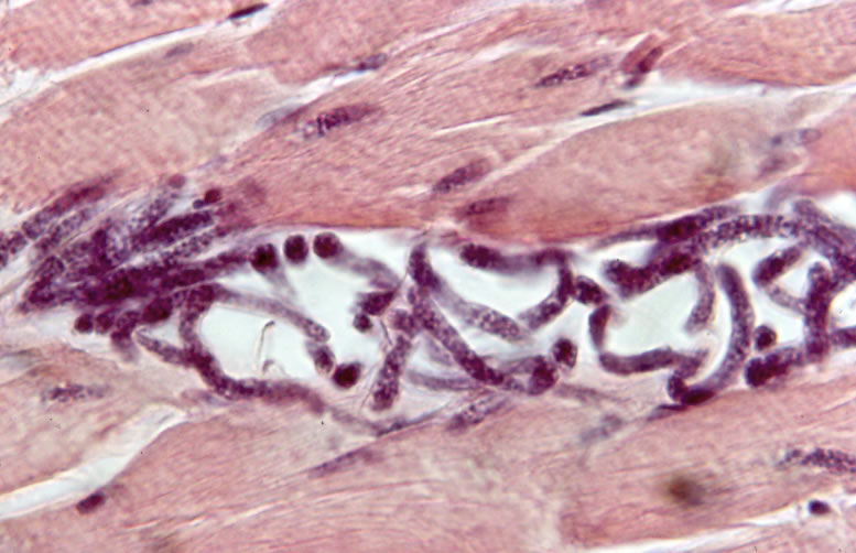 Bolus of newborn larvae injected into mouse muscle. 10 min post-injection. H&E