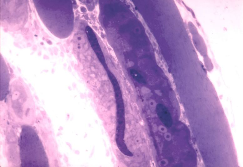 L1 in developing nurse cell. 8 da post-injection. Note worm has yet to coil up. Thick epon section.