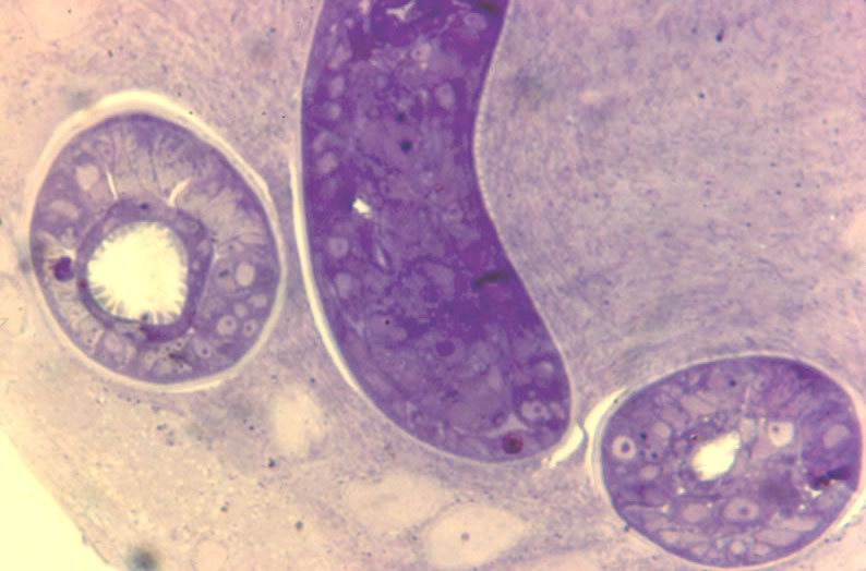 L1 in developing nurse cell. 15 da post-injection. Parasite now infectious for a new host. Thick epon section.