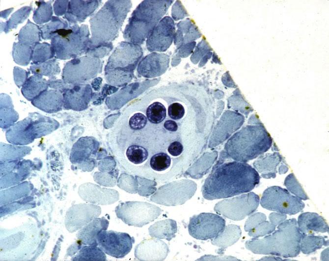 Mature nurse cell-parasite complex. Thick epon section.