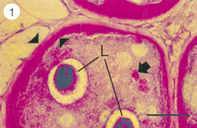 Mature nurse cell-parasite complex stained with PAS to detect collagen. Note that worm cuticle also contains collagen.Paraffin section.