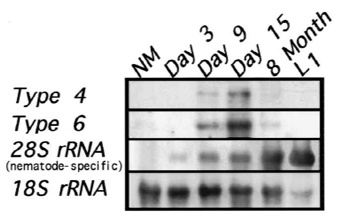 Northern analysis of types 4 and 6 collagen RNAs in synchronized infected mouse muscle.