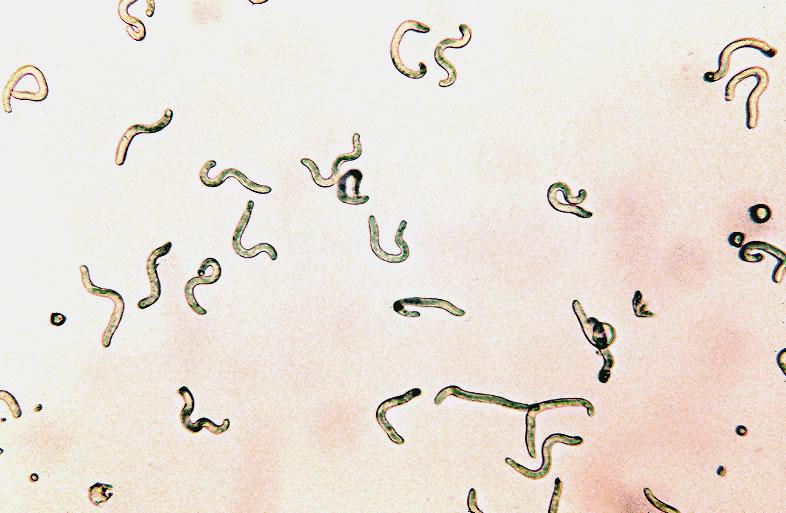 Newborn larvae, low magnification