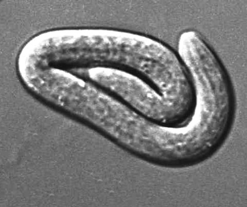 Newborn larva, high magnification. Phase interference Nomarski optics.