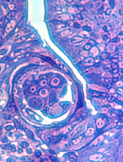 Adult female in situ, cross section. Epon embedded thick section. Worm is embedded in a single row of columnar epithelial cells.