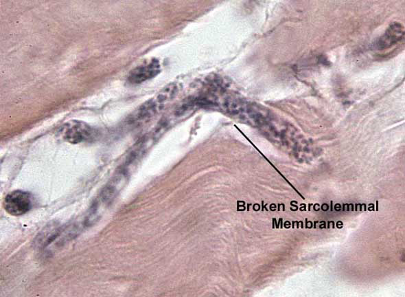 Newborn larva entering muscle cell 10 min post-injection. H&E