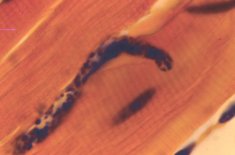 Newborn larva entering muscle cell 10 min post-injection. H&E. Note stretched sarcolemma, indicating worm has not yet entered cell cytoplasm.