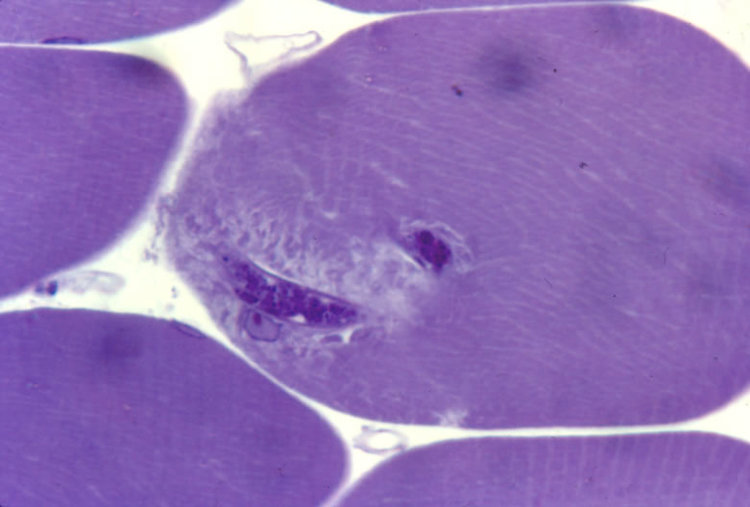 Newborn larva entering muscle cell. Thick section. Note damage to sarcolemma.
