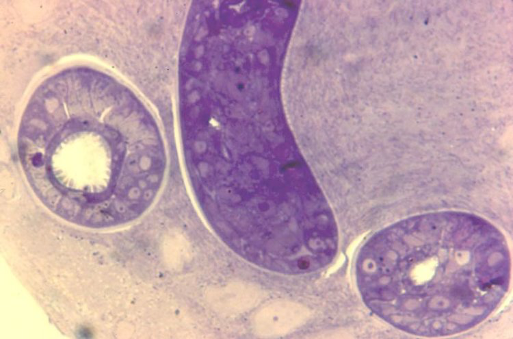 L1 in developing nurse cell. 15 days post-injection. Parasite now infectious for a new host. Thick epon section.