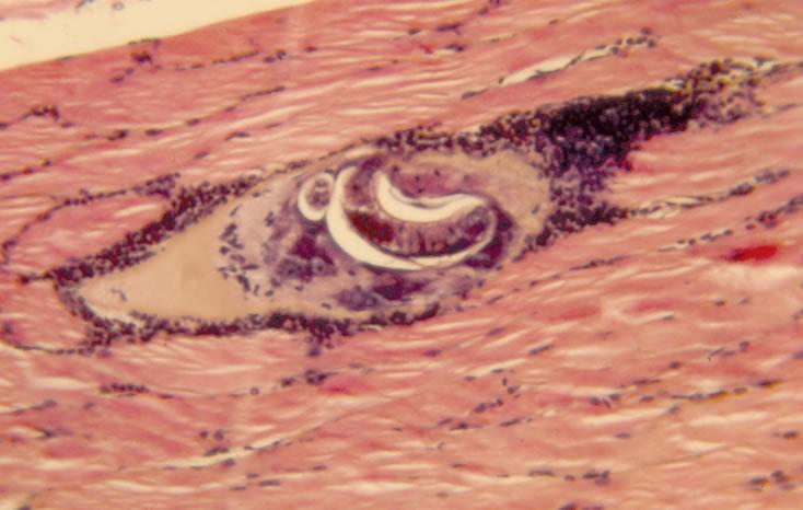 Mature nurse cell-parasite complex. Note intense inflammatory response. H&E