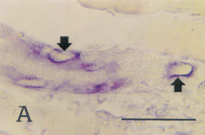 In situ hybridization of sections from mouse tissue 7 days after infection, using a probe for type IV collagen.