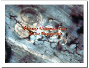 Parasitic Nemateodes that Induce Angiogenesis