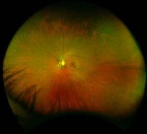 healthy-retina.jpg