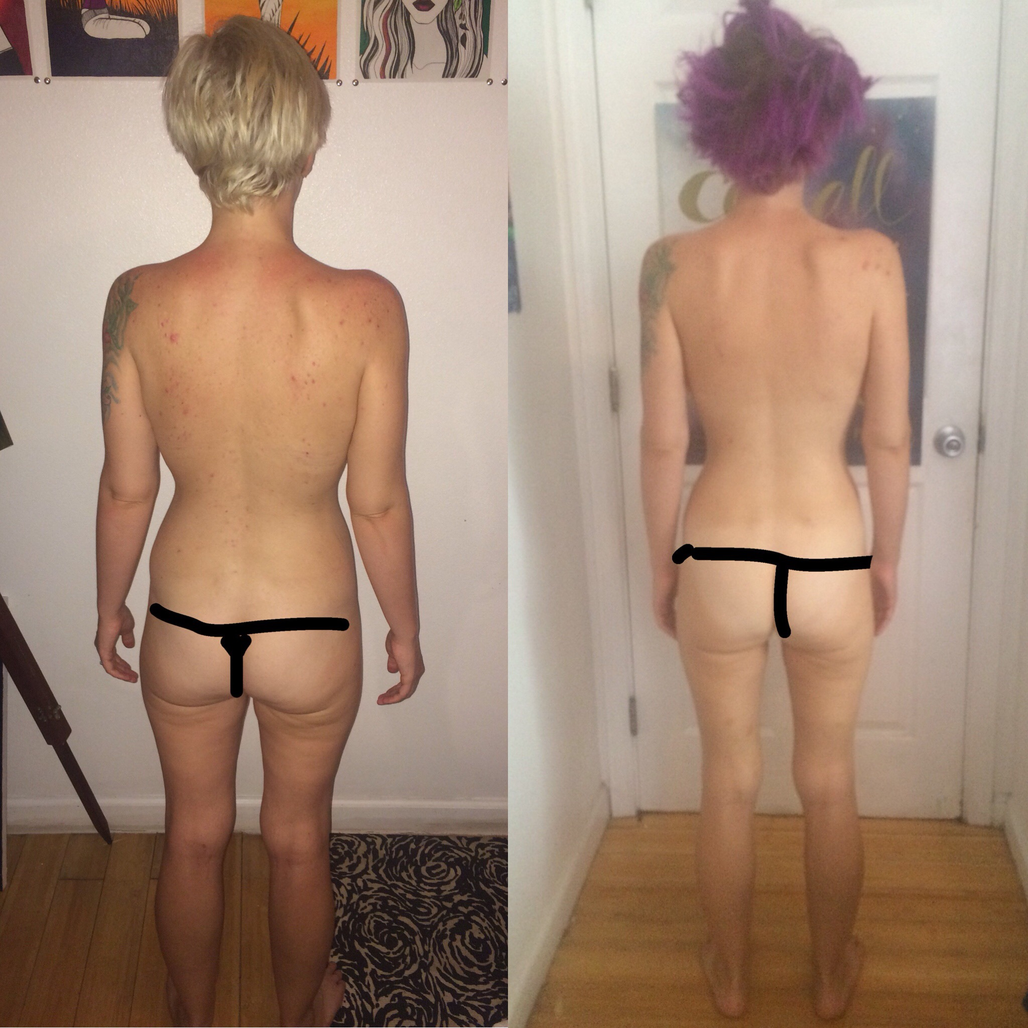 3 month difference! Notice the difference in my hips and back - it's huge in just a short amount of time. There's been new progress since, I'll update when I have new photos!