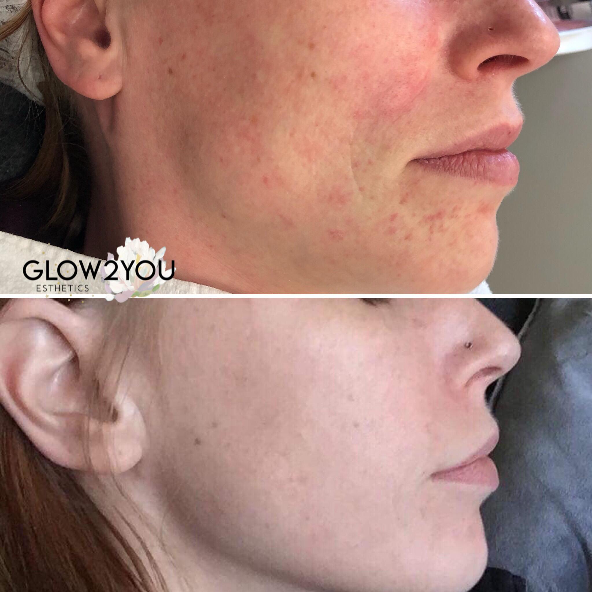 Detox Glow-Up - A Signature AVÄYA MedSpa Facial Treatment*Results are 1 day post treatment