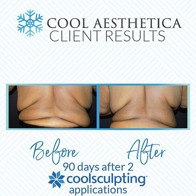 Tremendous results!  We are asked all the time about results.  We pride ourselves in providing realistic expectations.  This precious lady was so happy to de-bulk her back so clothes fit smoother and more comfortable.  #coolsculpting #coolsculptingbeforeandafter  #sanantonioeats #sanantoniospurs #bodysculpting #lipo #sanantoniorealtor