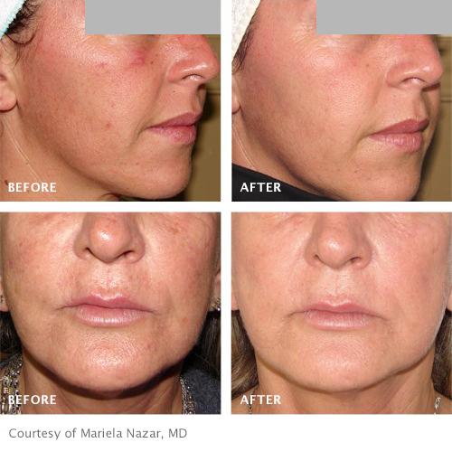 Skin repair, skin tags, red veins, milia, rosacea,pigmentation, problem skin, IMAGE skinpeels, dermalogica facials, microdermabrasion, mesotheraphy, meso vytal, skin peels, skin left, exporex, diathermy, red vein laser