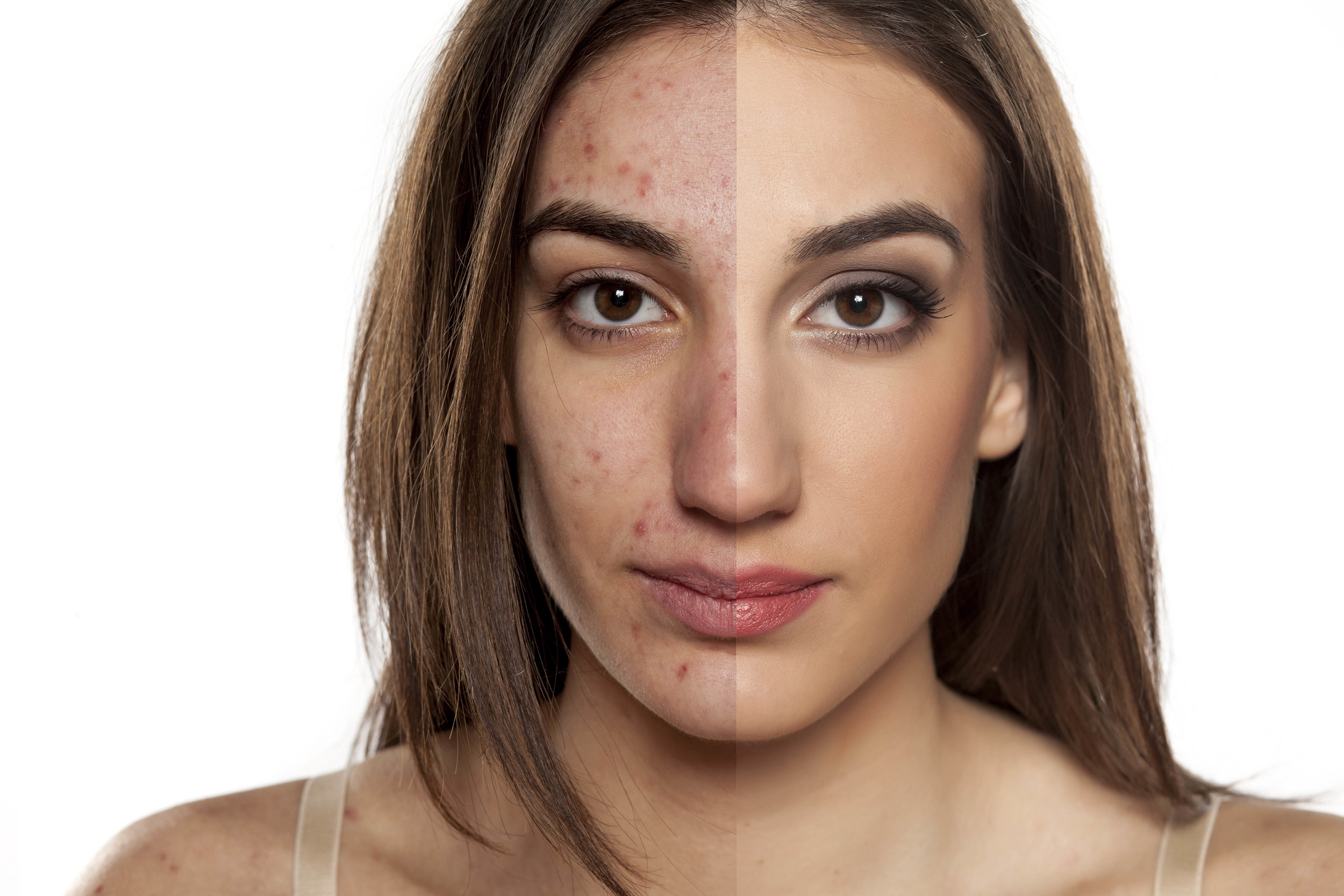 Skin repair, skin tags, red veins, milia, rosacea,pigmentation, problem skin, IMAGE skinpeels, dermalogica facials, microdermabrasion, mesotheraphy, meso vytal, skin peels, skin left, exporex,