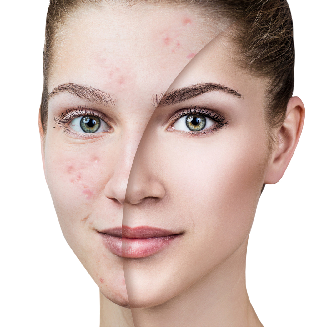 Skin repair, milia, skin tags, rosacea, problem skin, pigmentation, micro dermabrasion, mesotheraphy, meso vytal, non-surgical face lift, exporex, skin peels, IMAGE Skincare, Dermalogica,