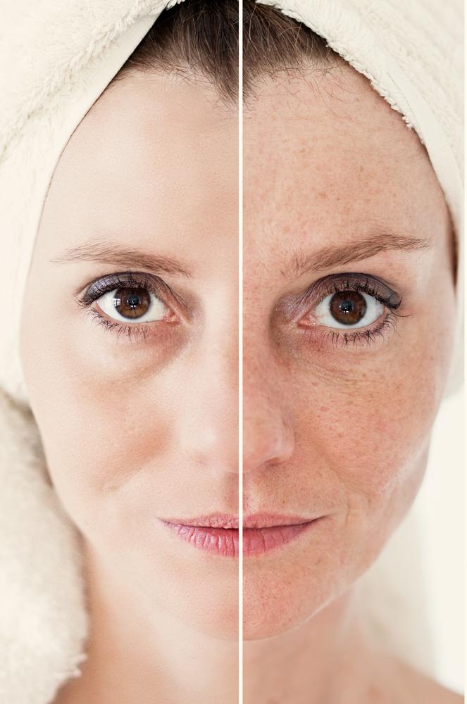 Pigmentation Fractional Laser Skin Treatment