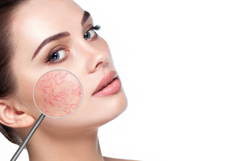 Red Vein Treatment