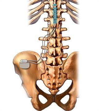 spinalcordstimulatorvu3053_1083213.jpg