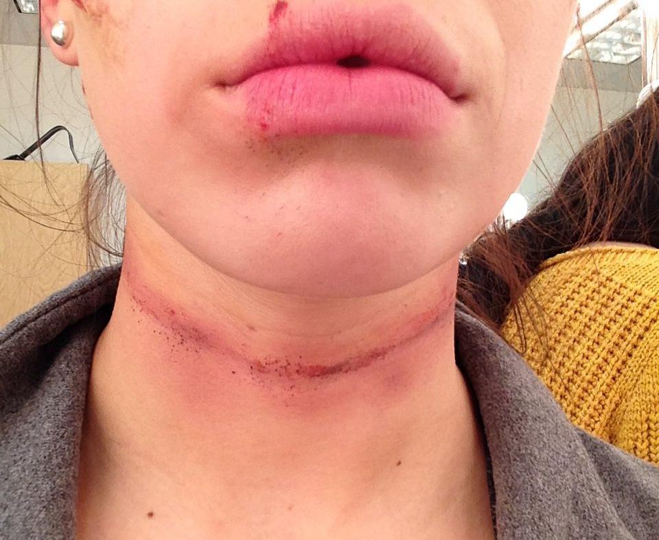 Ligature mark on the neck