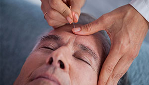 Acupuncture-Ft-Hunt-massage-small.jpg