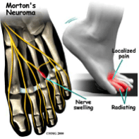 mortons-neuroma.png