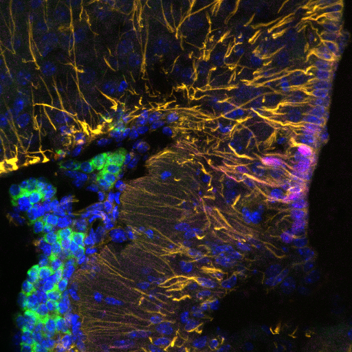 Roles for Non-Neuronal Cells in Energy Balance   Our unbiased single-cell transcriptomics analyses have suggested novel roles in energy balance for non-neuronal cell types, including the tanycytes stained in yellow (Vimentin) and red (Sprr1a) above.   Pictured above: immunofluorescence of Vimentin (yellow), Sprr1a (red), Cck::GFP (green), and DNA (blue) at the arcuate and median eminence border.