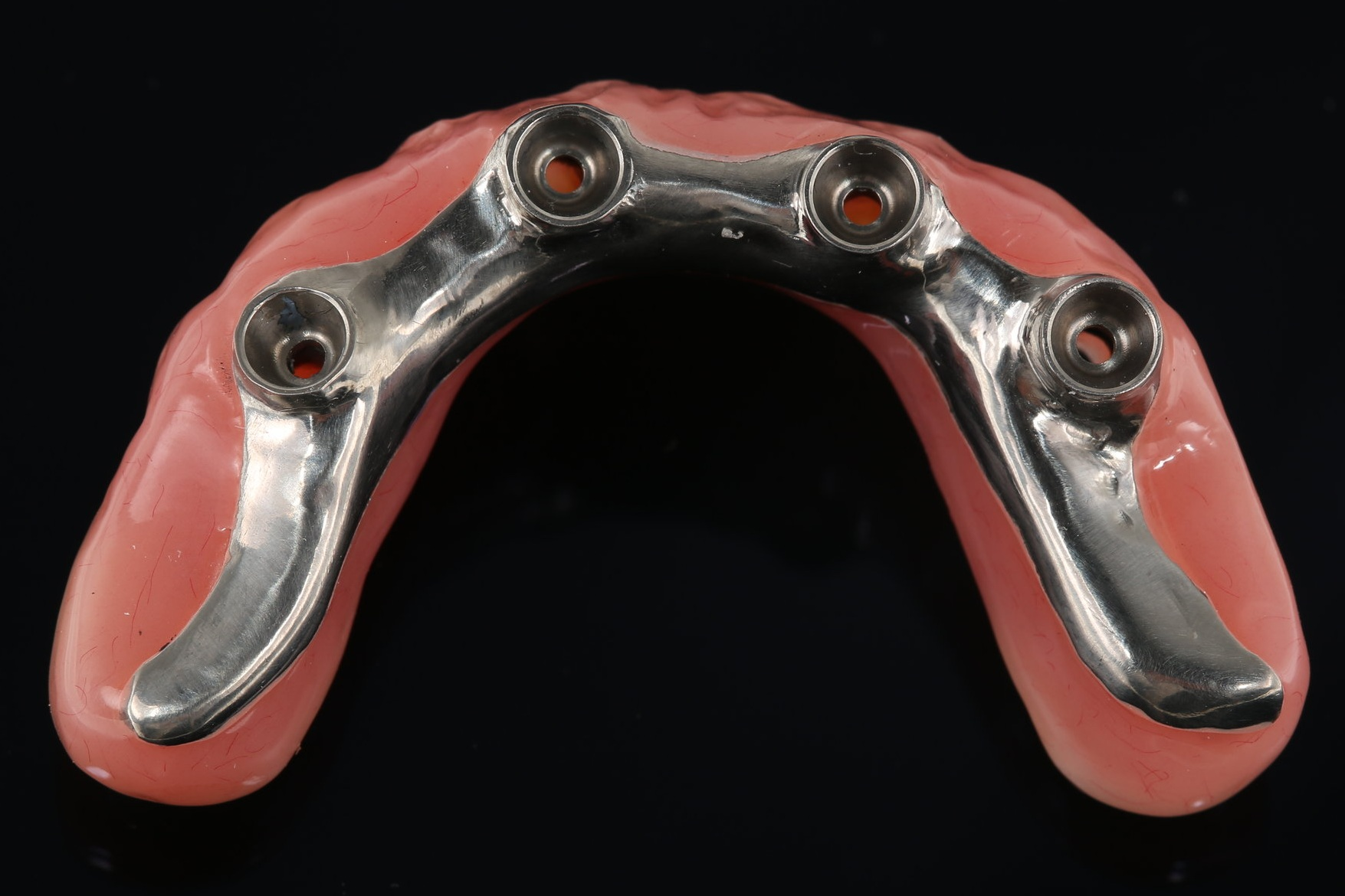 Disadvantages - Tooth fracture, occurs quite often needing repairs and adjustmentsStains over timeWears, therefore need replacement every 5 to 10 yearsAnalogue technique, difficult to re-do or to duplicate if needed