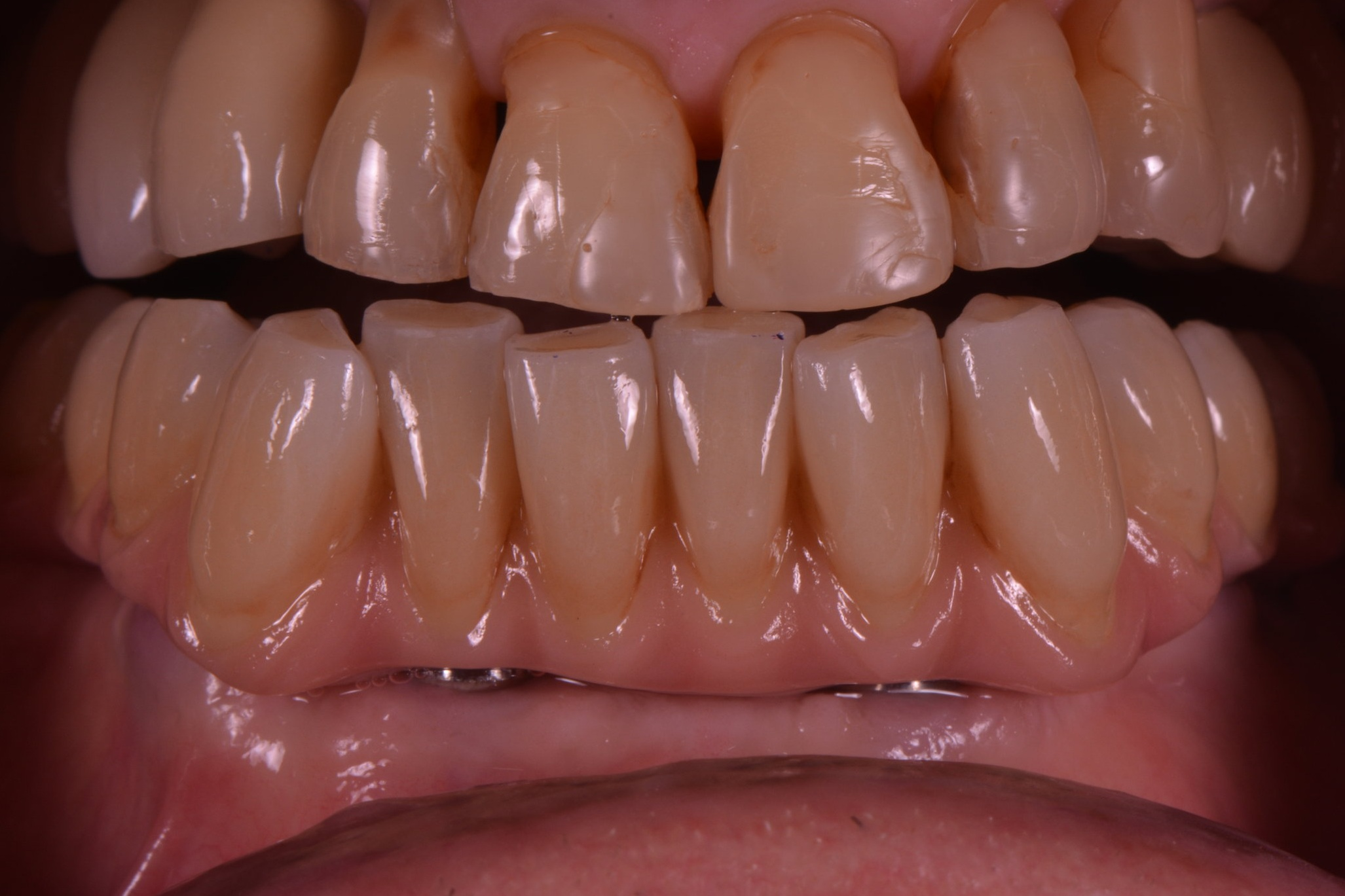 Advantages - Esthetics, is questionable depending on prosthesis thickness as well as laboratory technician unique talentGreat color stability: due to porcelain and glaze nature it does not stain or fade a way over timeGreat oral hygiene:No wear or fractureDigital technique: easy to reproduce if needed