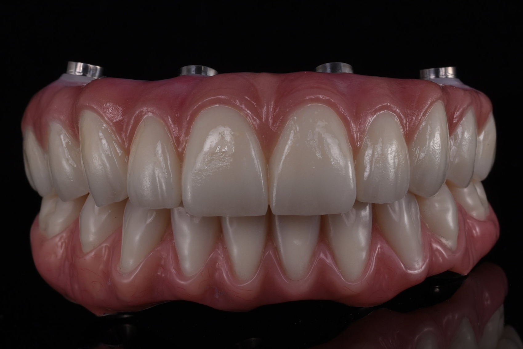 Upper Zirconia and lower conventional acrylic prostheses