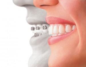 invisalign_vs_braces.jpg