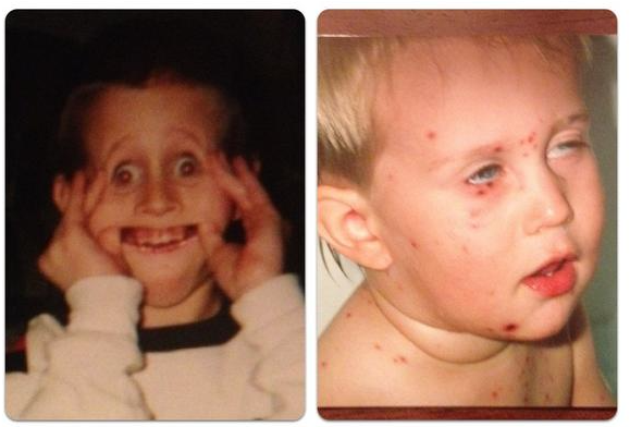 Wheeler as a young child making a face and possibly with chicken pox.