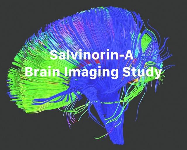 brainimg.jpg