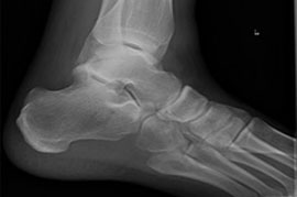 Ankle X-ray.jpg