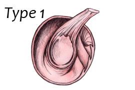 SLAP Lesion 1.jpg