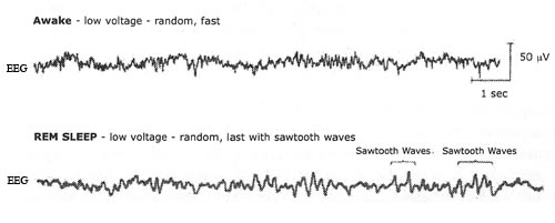awake-vs-rem-sleep-brain-activity.jpg