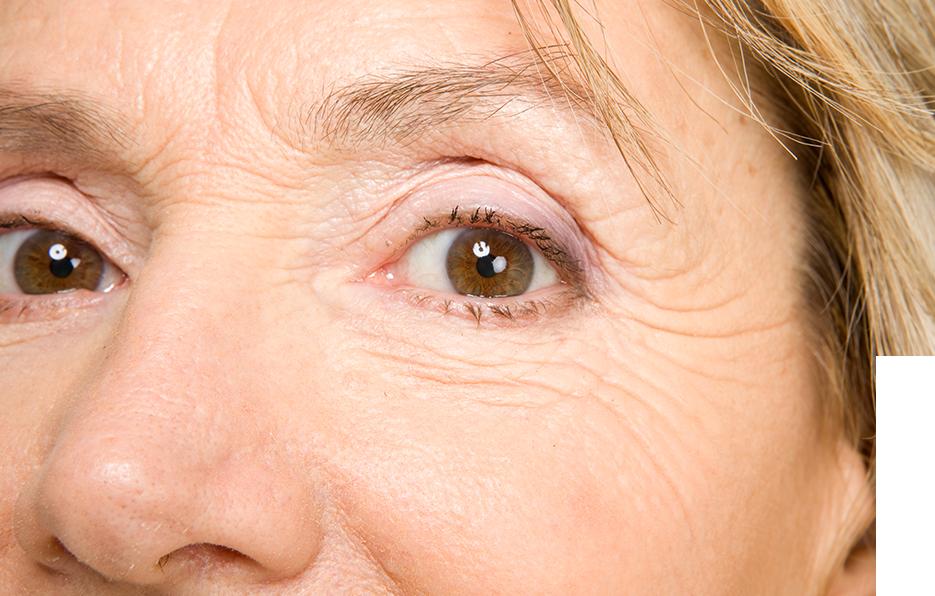 wrinkles 2.png