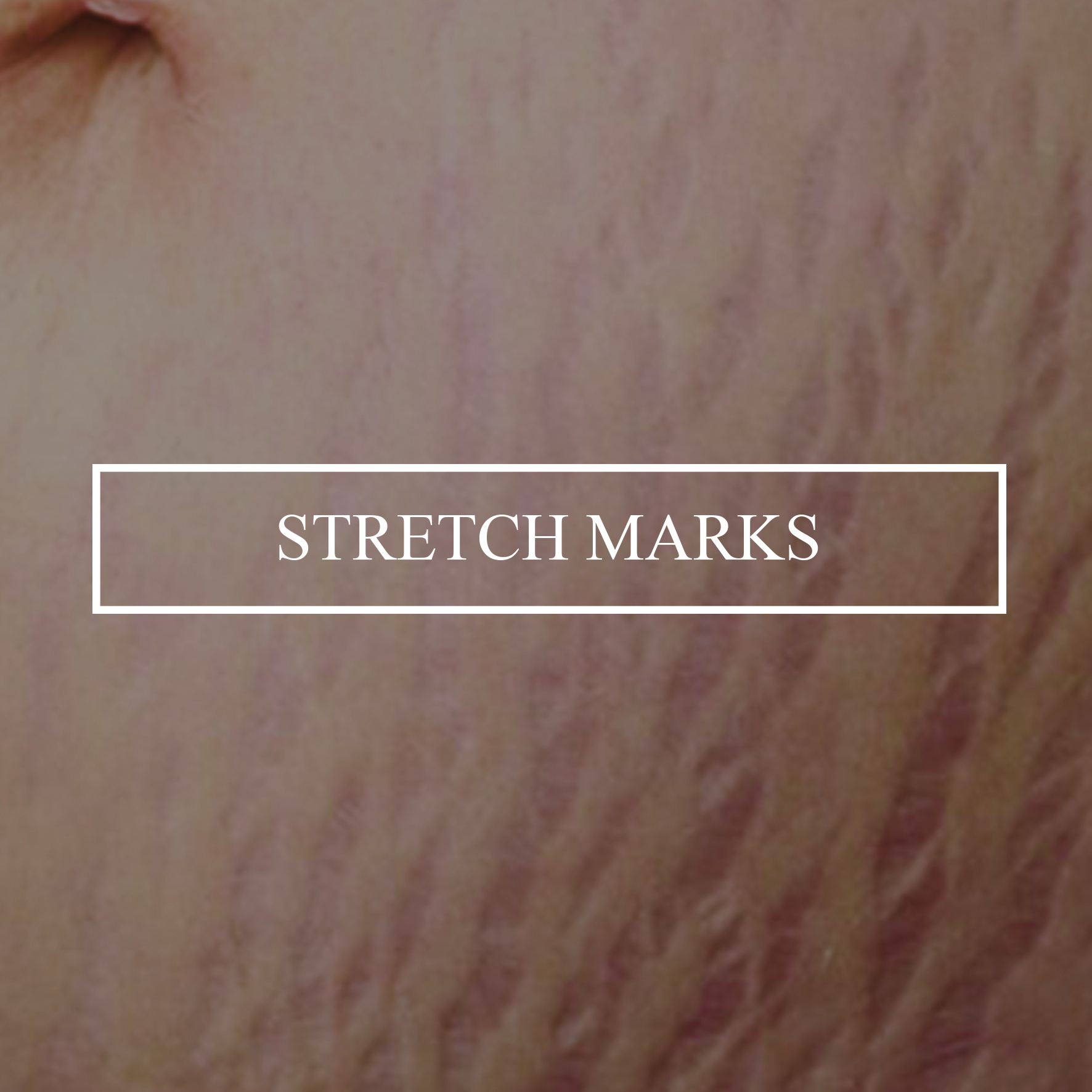 stretch-mark-tattoos.jpg
