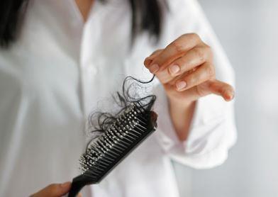 hair loss 2.JPG