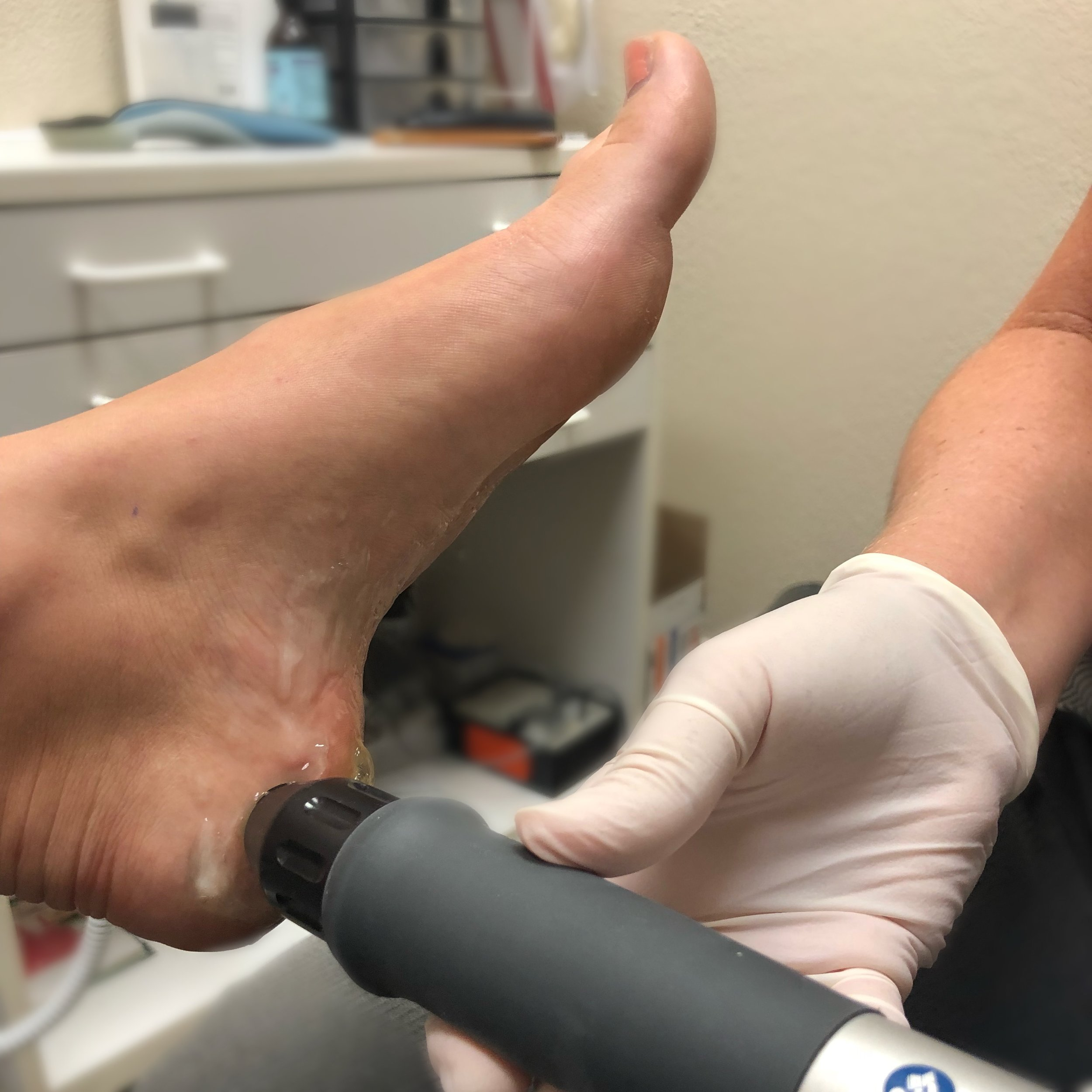 EPAT Treatments - This exciting new technology is a non- invasive and FDA approved treatment for pain, plantar fasciitis, heel pain, bone spurs, and even more.