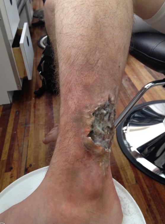 Copy of Custom Prosthetic