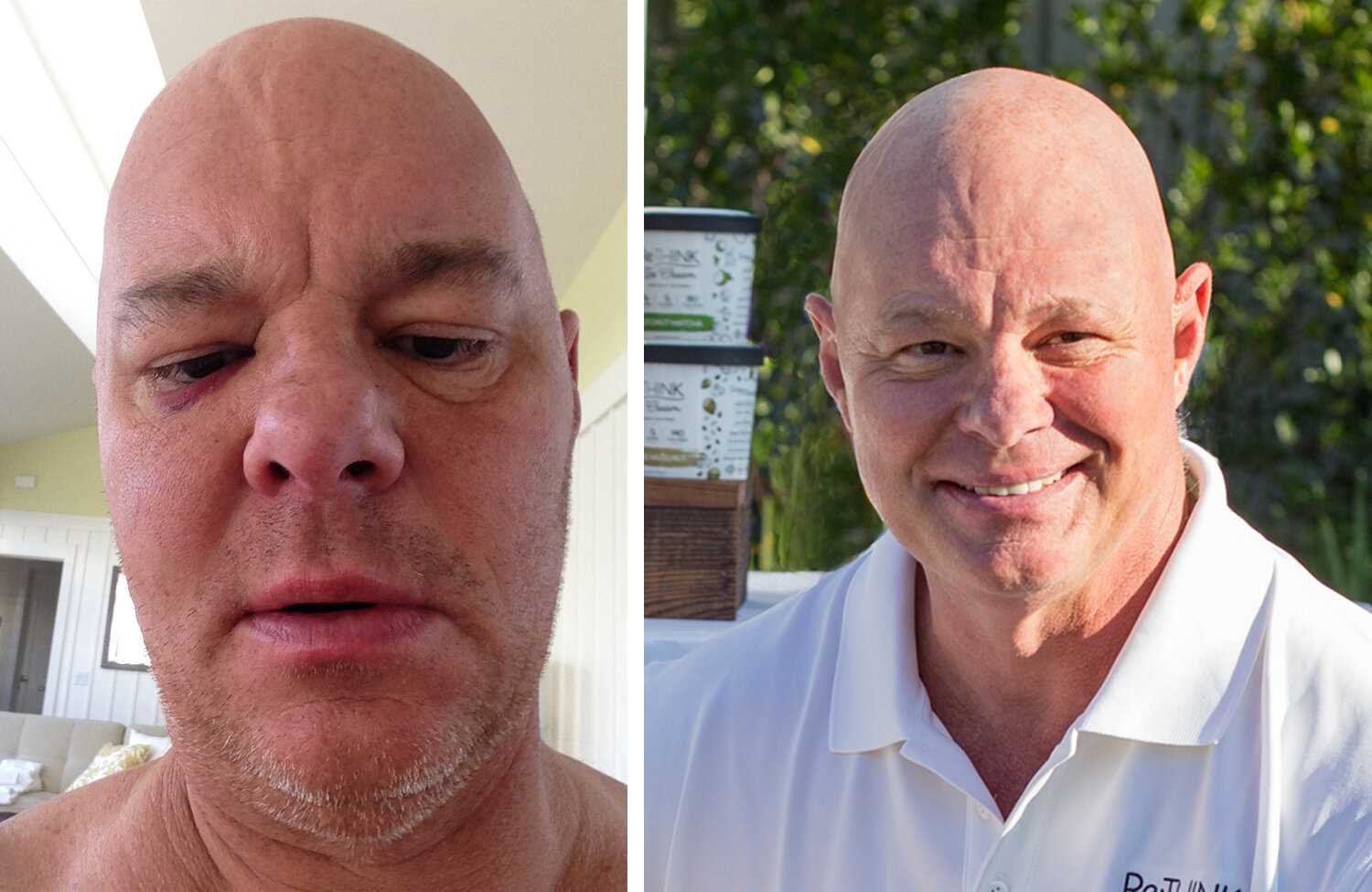 George before and after his recovery — a much happier and healthier man!