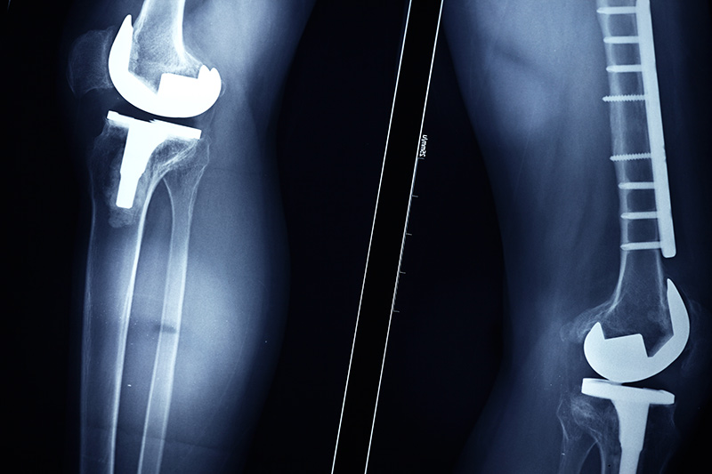 defective-medical-devices-the-matthews-firm.jpg