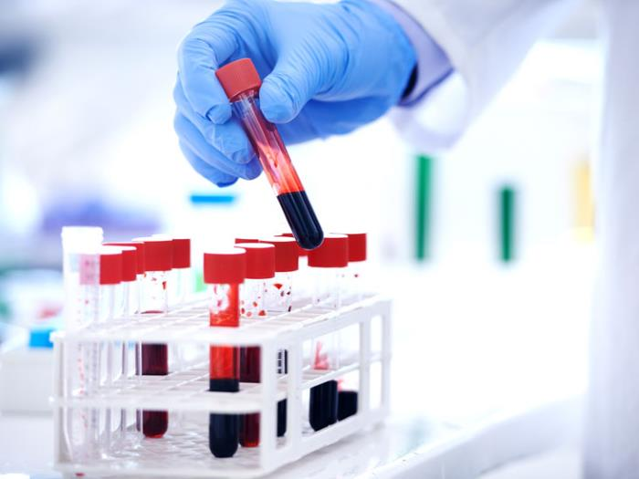 Анализ на общий белок крови
