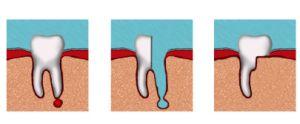 гемисекция корня