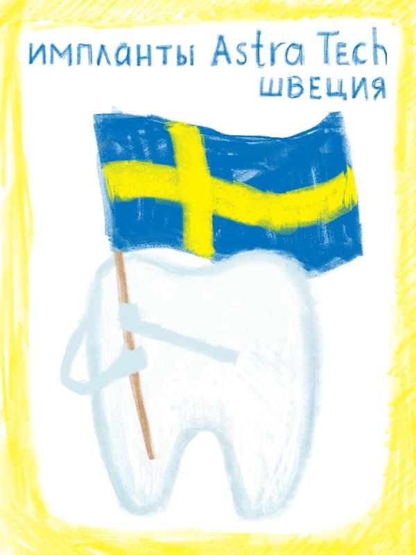 шведские импланты
