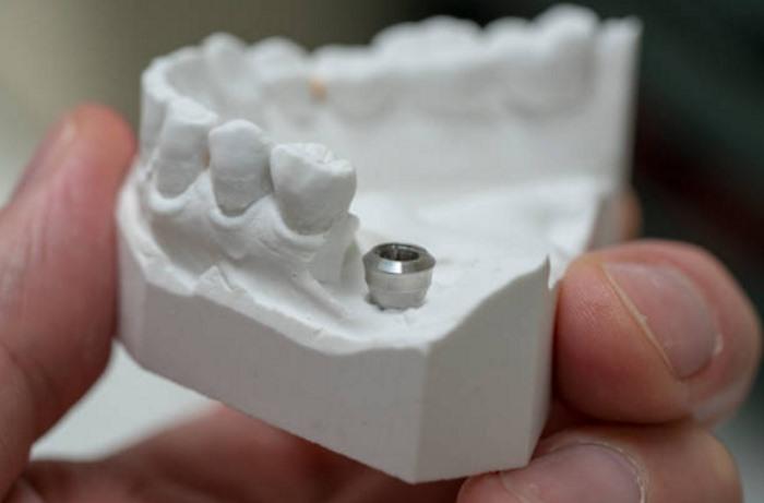 имплантация зубов в москве.jpg